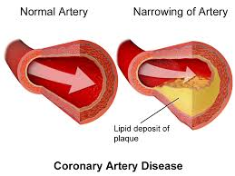 atherosclerosis-cause-plaque