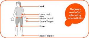 osteoarthritis-locations